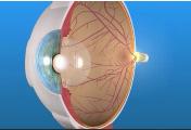 Macular-Edema-ischemia