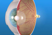 Laser-For-Macular-Edema